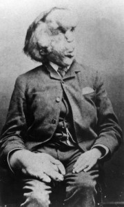 Joseph Merrick - The 'Elephant Man'